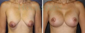 Breast Lift Patient 82 before and after facing forward.