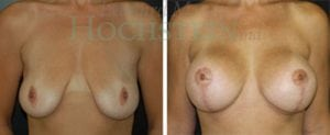 Breast Lift Patient 83 before and after facing forward.