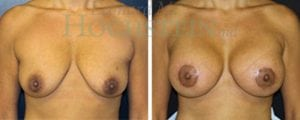Breast Lift Patient 84 before and after facing forward.