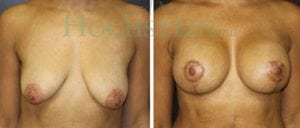 Breast Lift Patient 92 before and after facing forward.