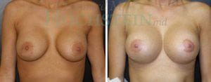 Breast Lift Patient 95 before and after facing forward.
