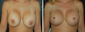 Breast Lift Patient 109 before and after facing forward.