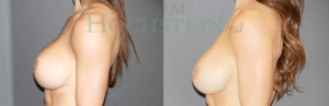 Breast Revision Patient 03 before and after facing left.