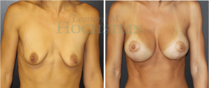 Breast Lift Patient 138 before and after facing forward.