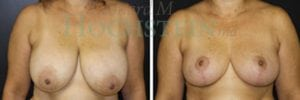 Breast Reduction Patient 14 before and after facing forward.