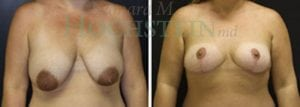Breast Reduction Patient 15 before and after facing forward.