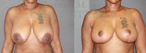 Breast Reduction Patient 17 before and after facing forward.
