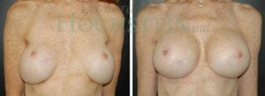 Breast Revision Patient 16 before and after facing forward.