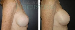 Breast Revision Patient 16 before and after facing right.