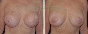 Breast Revision Patient 23 before and after facing forward.