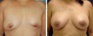 Breast Revision Patient 24 before and after facing forward.