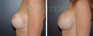 Breast Revision Patient 25 before and after facing left.