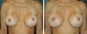 Breast Revision Patient 30 before and after facing forward.