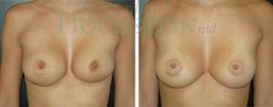 Breast Revision Patient 31 before and after facing forward.