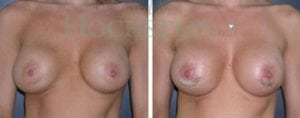 Breast Revision Patient 32 before and after facing forward.