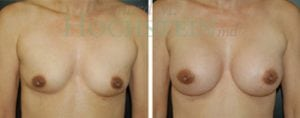 Breast Revision Patient 33 before and after facing forward.