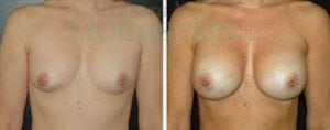 Breast Revision Patient 36 before and after facing forward.