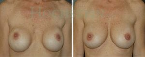 Breast Revision Patient 38 before and after facing forward.