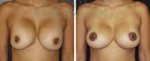 Breast Revision Patient 43 before and after facing forward.