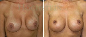 Breast Revision Patient 44 before and after facing forward.