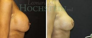 Breast Revision Patient 45 before and after facing right.
