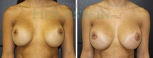 Breast Revision Patient 48 before and after facing forward.