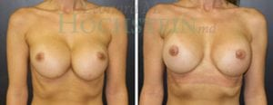 Breast Revision Patient 49 before and after facing forward.