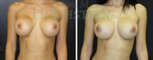 Breast Revision Patient 50 before and after facing forward.