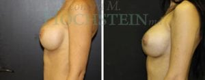Breast Revision Patient 50 before and after facing left.
