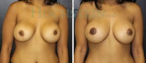 Breast Revision Patient 51 before and after facing forward.