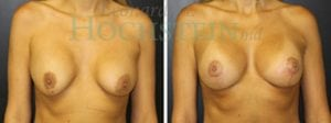 Breast Revision Patient 52 before and after facing forward.
