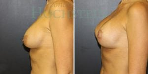 Breast Revision Patient 52 before and after facing left.
