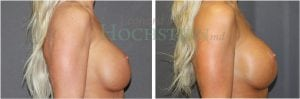 Breast Revision Patient 57 before and after facing right.