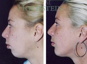 Chin Implant Patient 01 before and after facing left.