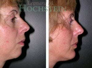 Chin Implant Patient 04 before and after facing right.