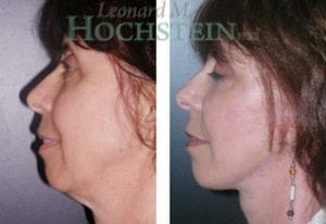 Chin Implant Patient 05 before and after facing left.