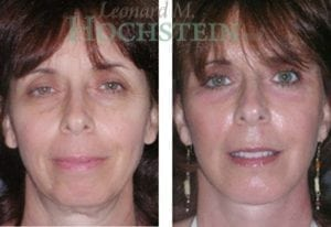 Chin Implant Patient 05 before and after facing forward.