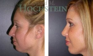 Chin Implant Patient 06 before and after facing left.