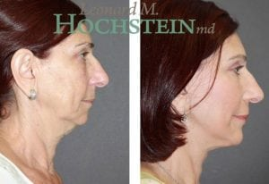 Chin Implant Patient 07 before and after facing right.