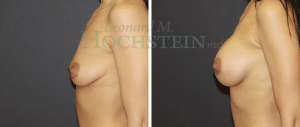 Breast Augmentation Patient 236 before and after facing left.