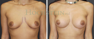 Breast Augmentation Patient 236 before and after facing forward.