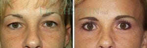 Eyelid Patient 01 before and after facing forward.