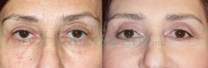 Eyelid Patient 04 before and after facing forward.