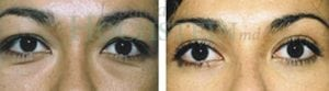Eyelid Patient 06 before and after facing forward.