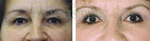 Eyelid Patient 07 before and after facing forward.