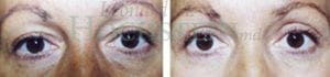 Eyelid Patient 08 before and after facing forward.