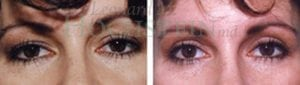 Eyelid Patient 10 before and after facing forward.