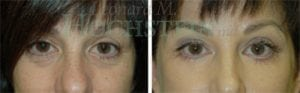 Eyelid Patient 16 before and after facing forward.