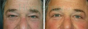 Eyelid Patient 17 before and after facing forward.