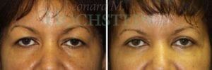 Eyelid Patient 18 before and after facing forward.